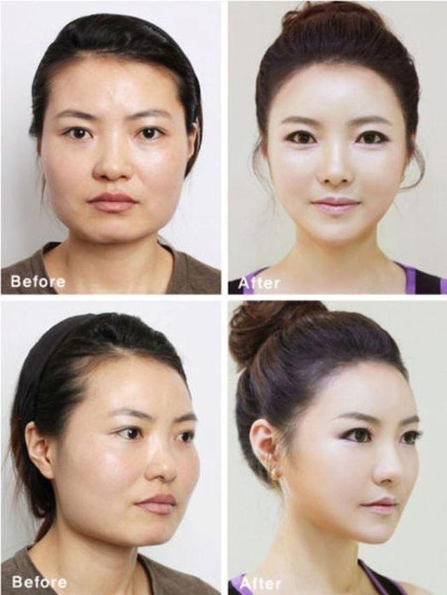 Plastic Surgery in Korea! 10 Pics!