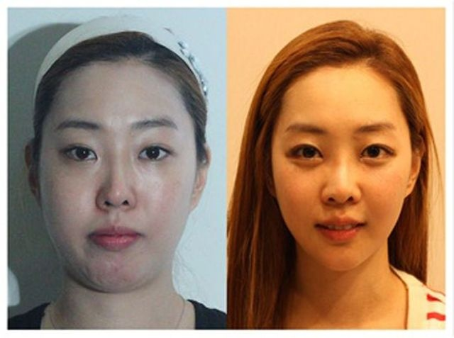 Plastic Surgery in Korea! 10 Pics!