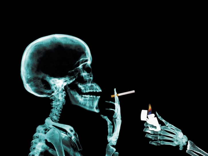 X-Rays: How Funny We May Look! 10 Pics!