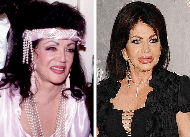 10 Famous But Worst Examples of Plastic Surgery Ever!