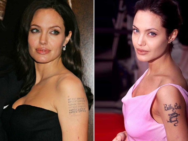 10 Celebs Who Removed Tattoo Mistakes!